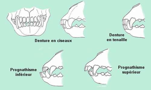 dentur10